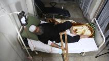علاج كيميائي في سورية (عامر المهباني/ الأناضول)