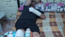 آثار اعتداء جنود الاحتلال على المقدسي محمود بركات (العربي الجديد)